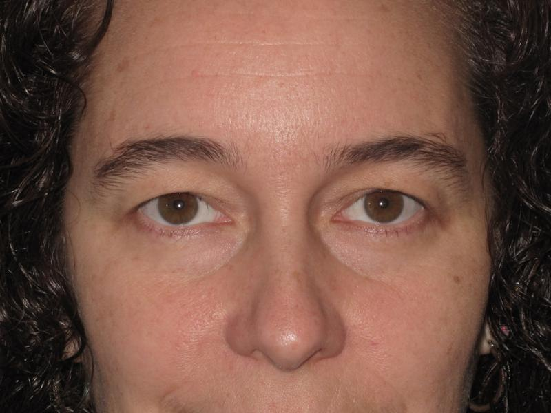 Dr  Mark Walker MD - Face - Lower Eyelid Surgery- Binghamton NY