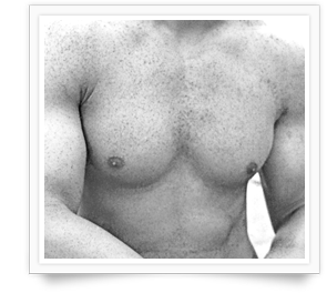 Dr Mark Waker - Binghamton Gynecomastia Cosmetic Surgeon